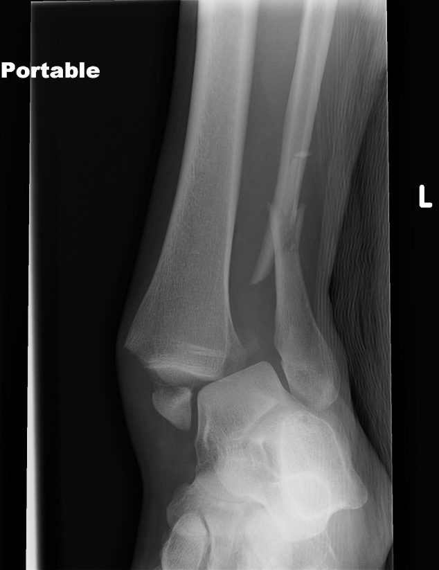 D) Fracture of tibia and fibula